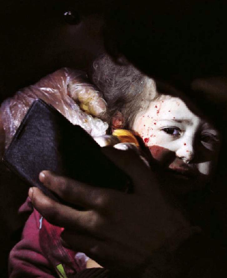 Operando a la luz del móvil en Alepo